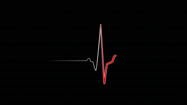 Red line of cardiogram monitor Red line of cardiogram monitor, EKG or ECG flatline on medical screen with grid. Heartrate monitor electrocardiogram. Seamlessly loop animation defibrillator stock videos & royalty-free footage