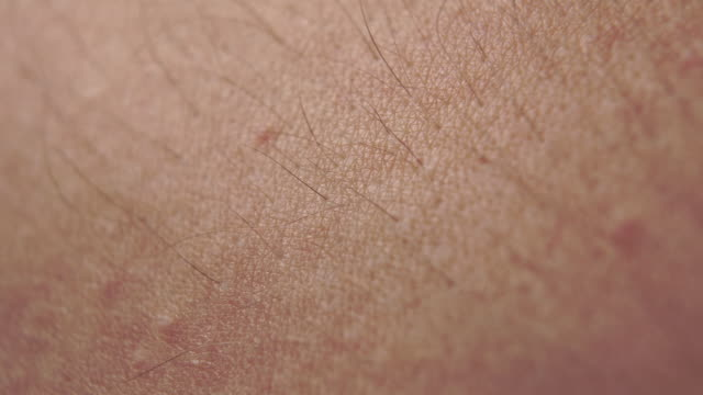 Reddened Caucasian skin with hair and moles Reddened Caucasian skin with hair and moles close-up. Pulse. Macro shot. goosebumps stock videos & royalty-free footage