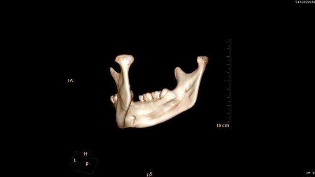 3d render resim çene - diş sağlığı stok videoları ve detay görüntü çekimi