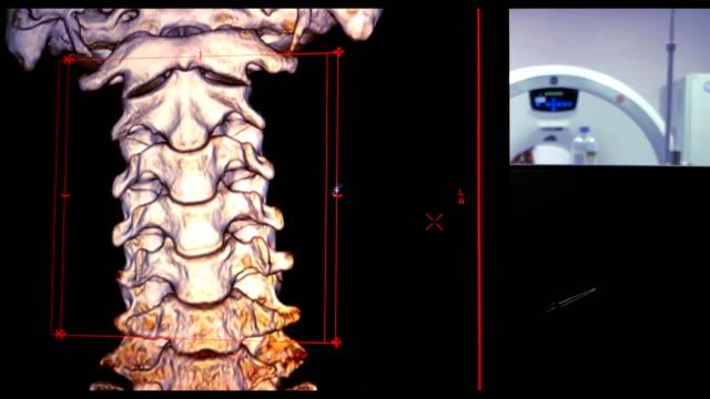 vídeos y material grabado en eventos de stock de proyección de imagen de render 3d de la columna cervical (columna c) - columna vertebral humana