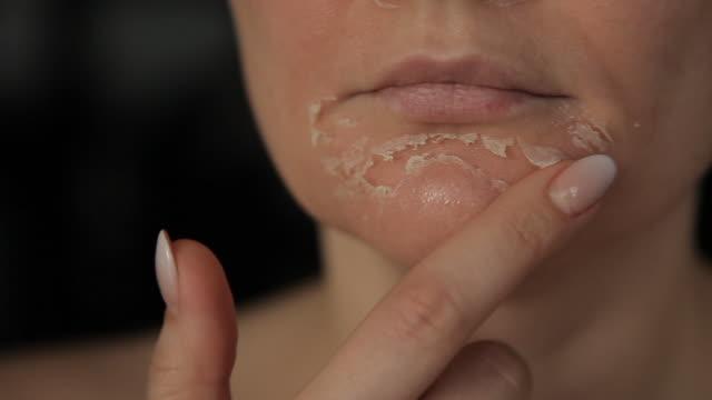 vídeos de stock, filmes e b-roll de descamação do rosto retinóico. rosto da mulher após o peeling químico. pele flaky na cara - descascado