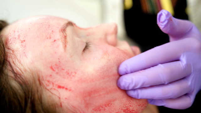 revolutionary treatment of rejuvenation with blood plasma - spa facial stock videos & royalty-free footage