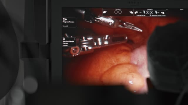 vidéos et rushes de chirurgie robotisée, enlèvement du cancer, chirurgien ressemble à l'écran montrant les organes internes - chirurgien