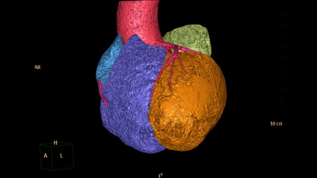 vídeos de stock e filmes b-roll de rotating  view of cta ( computed topographic angiography) of coronary artery - aorta