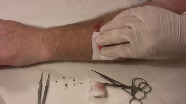 salve applied to a wound 2 - gazlı bez stok videoları ve detay görüntü çekimi