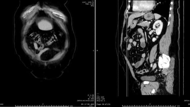 vídeos de stock e filmes b-roll de ct scan / cta abdominal aorta. medical technology concept. - aorta