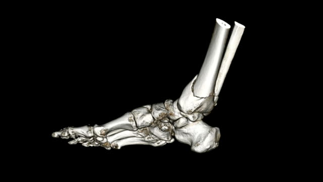CAT scan image of foot CAT scan image of foot ankle stock videos & royalty-free footage