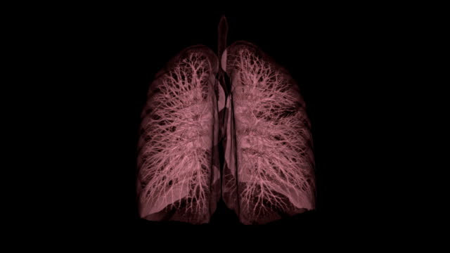 stockvideo's en b-roll-footage met 3d ct scan image of human lung - longen