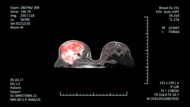 stockvideo's en b-roll-footage met mri scan monitor, borstkanker diagnose - breast cancer