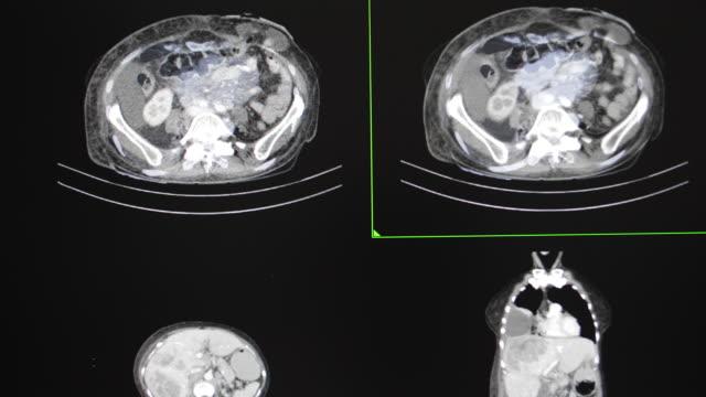 serviks metastazı ileri derecede karsinomu olan bir kadın hastanın göğüs ve karın tomografisi - rahim boynu stok videoları ve detay görüntü çekimi