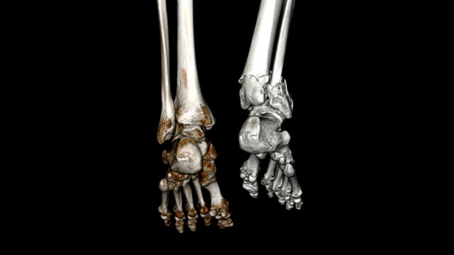 CAT Scan of Foot CAT Scan of Foot ankle stock videos & royalty-free footage