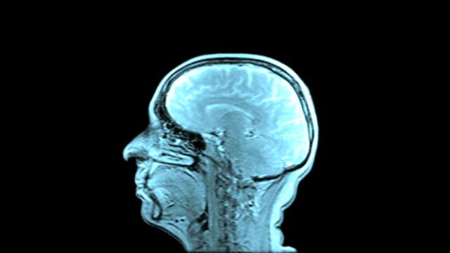 MRI Scan Of Human Brain (Blue Toned) video