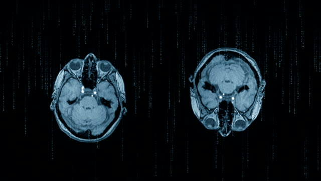 MRI Scan of Human Head and Floating Codes