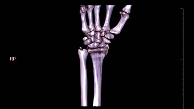 vídeos de stock, filmes e b-roll de imagem de renderização 3d comum pulso tomografia computadorizada de esquerda girando sobre fundo preto. fratura de osso ulnar. conceito de tecnologia médica. - punho