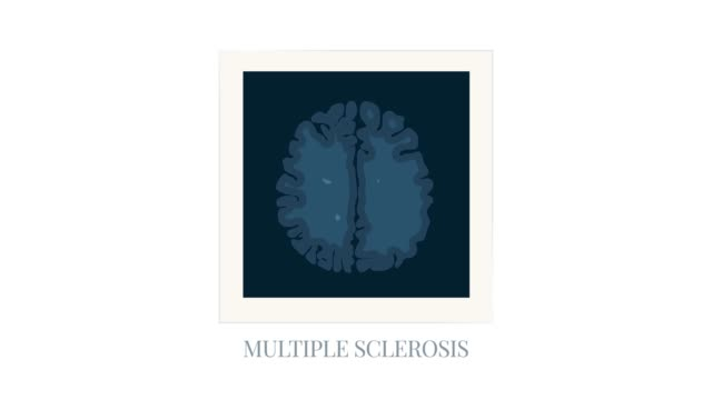 MRI scan photo frame of brain affected by multiple sclerosis, cartoon animation