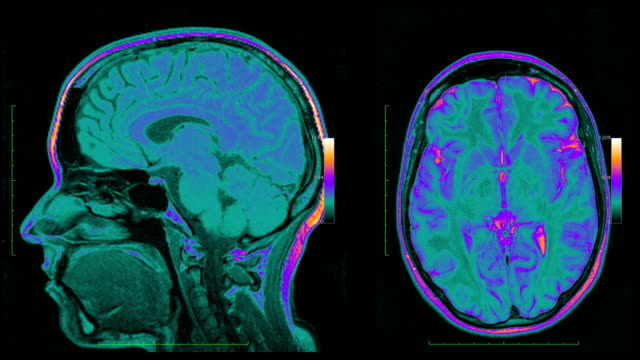 MRI scanner at work video