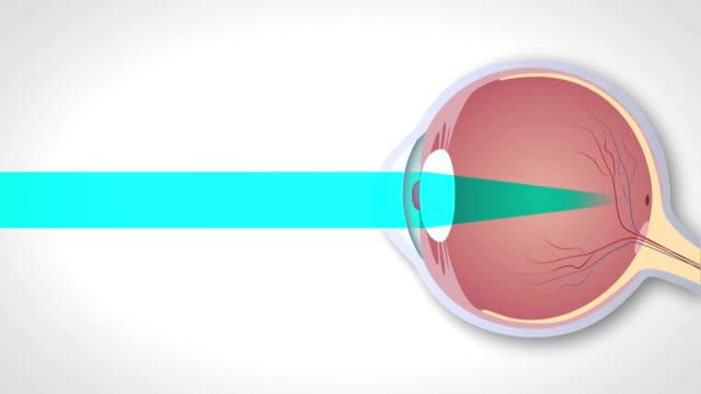 Schematic representation of hyperopia, myopia and astigmatism video