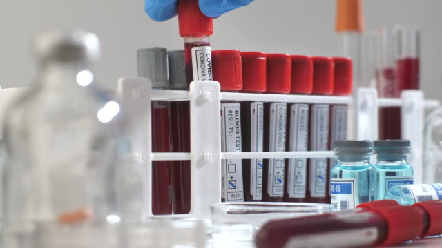 Scientific Checking blood sample tube in laboratory Scientific Checking blood sample tube in laboratory medical test stock videos & royalty-free footage