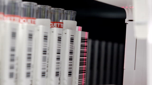 scientist add blood sample in to analyzer Laboratory. full HD video video