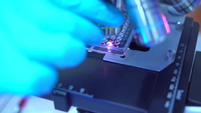 현미경에서 혈액 샘플을 분석 하는 과학자 - aids 스톡 비디오 및 b-롤 화면