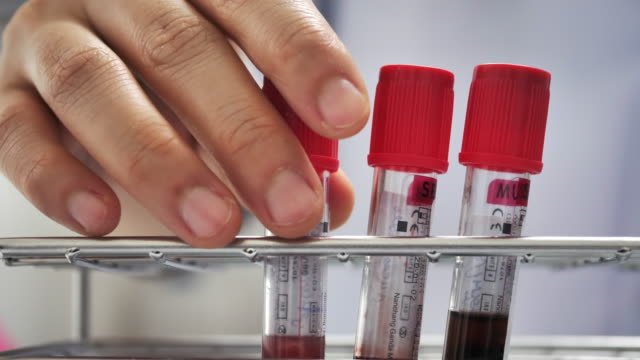 Scientist checking blood in laboratory