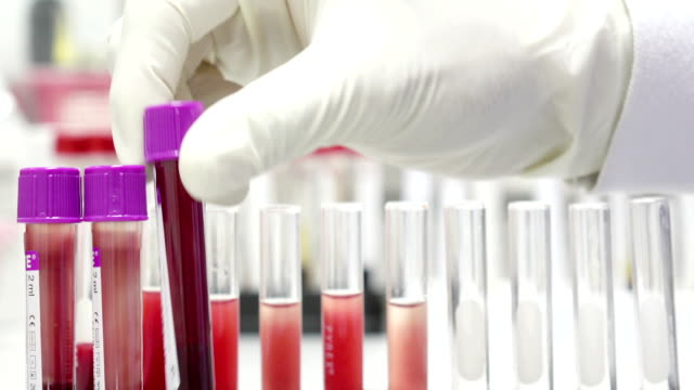 scientist checking blood in laboratory video