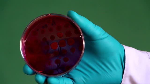 Scientist examines the Endo petri dish on the green background video