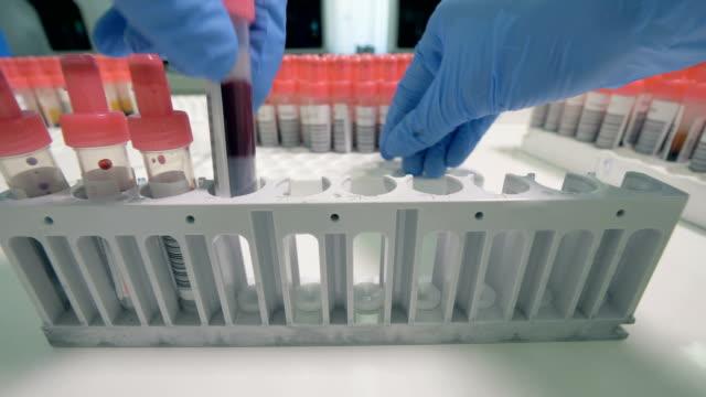 vetenskapsman fyller ett rack med blodprov, närbild. - test tube bildbanksvideor och videomaterial från bakom kulisserna