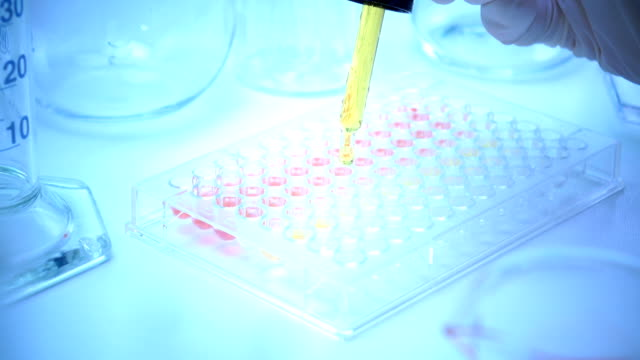 Scientist testing in laboratory , dropping chemical solution for diagnosis in human or researching video