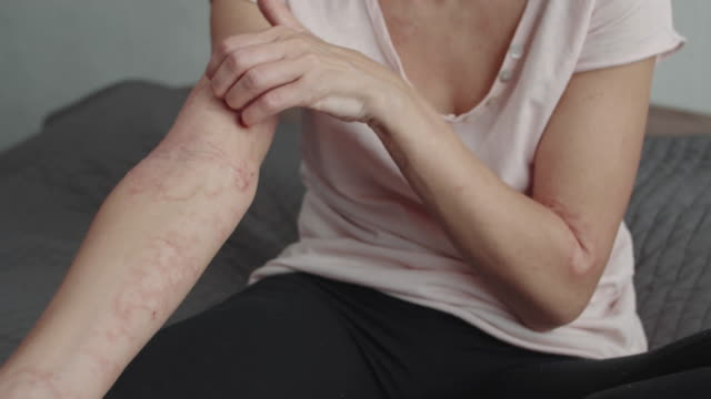 scratches arm with rash or dermatitis