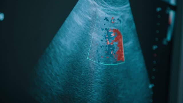 vídeos de stock e filmes b-roll de screen of echo-cardiography ultrasound machine - ventrículo do coração