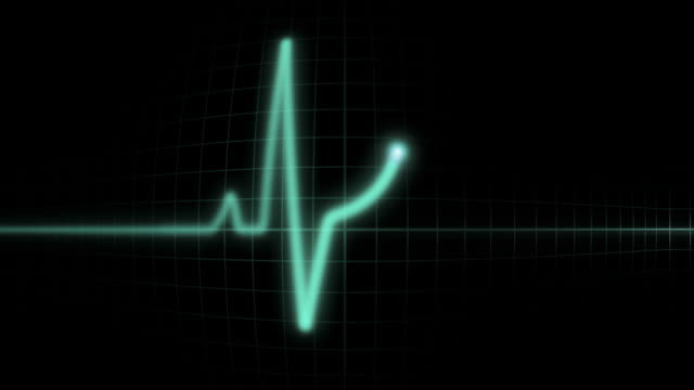 Screen Oscillator Convex Repetitive heartbeat on green convex  screen  monitor EKG. Puls serca na ekranie wypukłego, zielonego monitora EKGeartbeat pulse trace stock videos & royalty-free footage