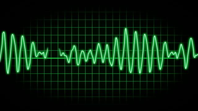 EKG Screen A fictional hospital computer screen monitoring a human heart.   defibrillator stock videos & royalty-free footage