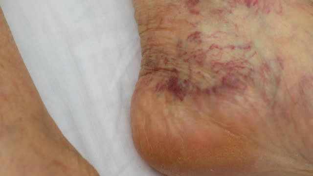 Senior leg with venous insufficiency Senior leg with venous insufficiency blood clot stock videos & royalty-free footage