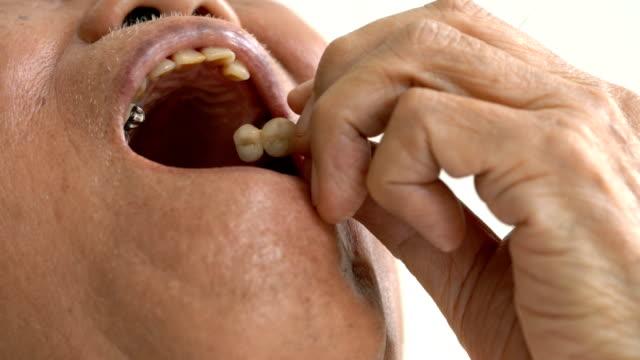 CU Senior man show his missing teeth spot