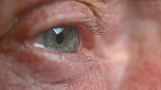 ECU Senior person's blue eye opening video