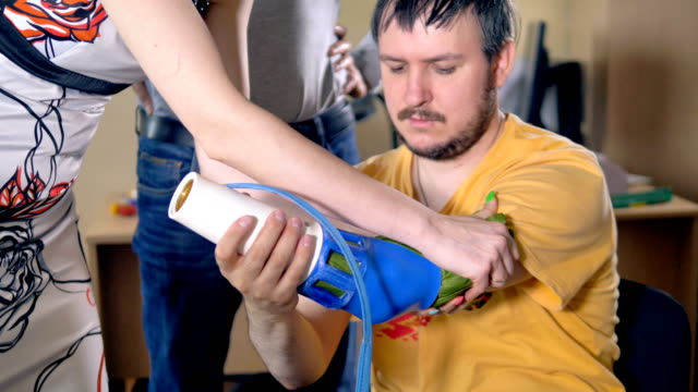 Setting artificial limb on the amputated hand. video