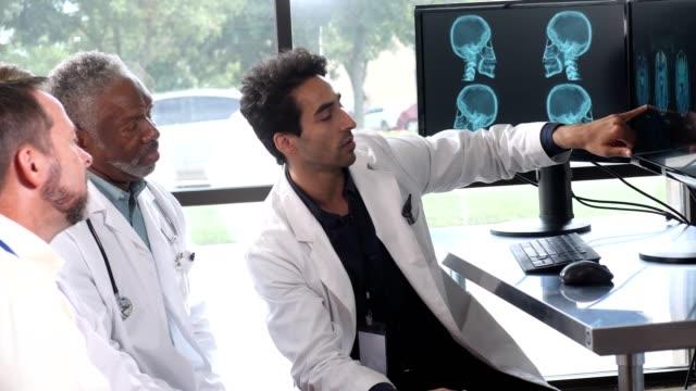 vídeos de stock e filmes b-roll de several doctor's listen to male doctor explain x-ray - instrumento para diagnóstico