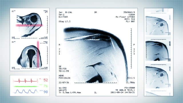 stockvideo's en b-roll-footage met shoulder mri scan. top, front and lateral view. white. - schouder