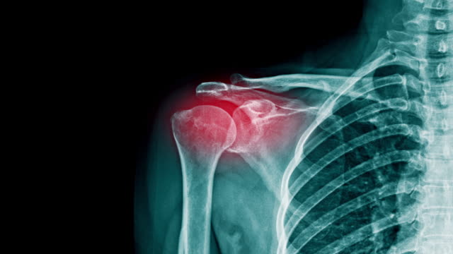 shoulder pain x-ray footage with red hight light on shoulder joint - clavicola video stock e b–roll