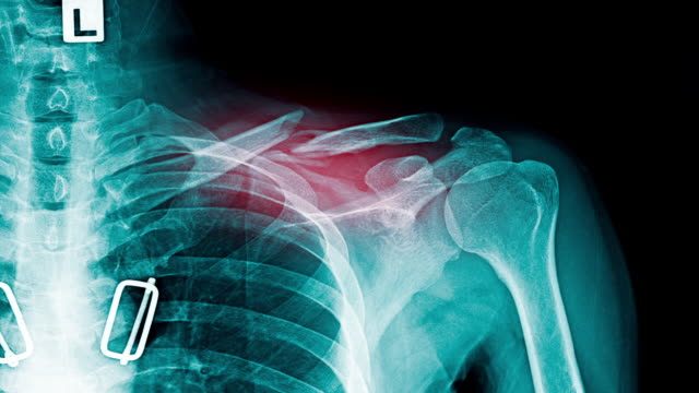 shoulder pain x-ray footage with red hight light - clavicola video stock e b–roll