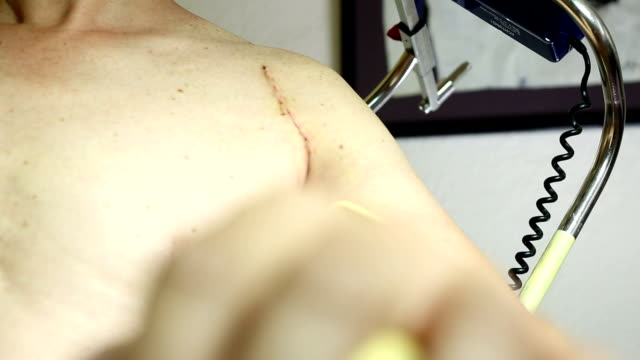 Shoulder rehabilitation with motor rail / Physiotherapy video