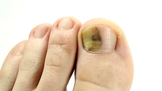 kranken nagel. pilz der großzehe. trennung des nagels vom nagelbett - fingernagel stock-videos und b-roll-filmmaterial