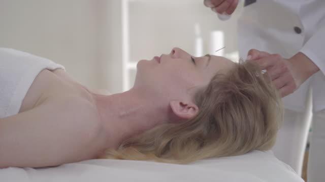 sidovy närbild av unga vackra kvinna som ligger i akupunktör kontor som läkare sätta nålar i hennes ansikte och huvud. porträtt av säker kvinnlig patient genomgår hårbotten akupunktur. - acupuncture bildbanksvideor och videomaterial från bakom kulisserna