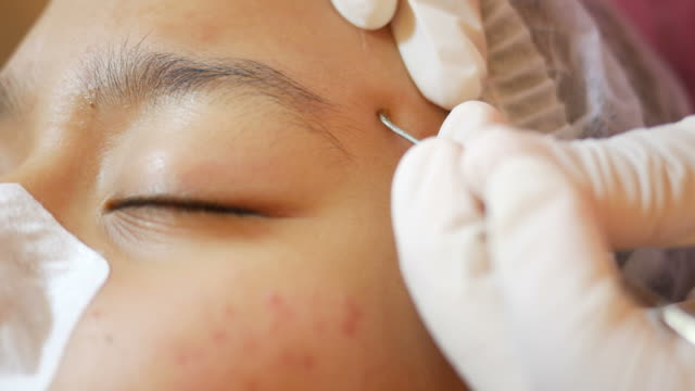 skin face  treatment video