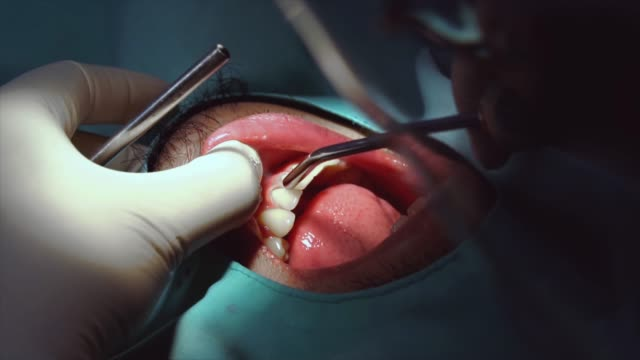 4K Slow motion footage closeup of Dentist checking and teeth cleaning and polishing to man patient at dental clinic, Tooth care and Dental check up concept Footage closeup of Dentist checking and teeth cleaning and polishing to man patient at dental clinic, Tooth care and Dental check up concept, 4K Slow motion clip practice drill stock videos & royalty-free footage