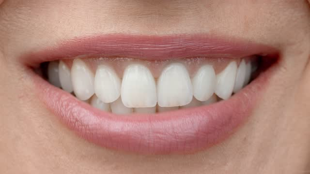 Smile of a charming girl with perfect white teeth close up. Perfect white teeth and a smile.