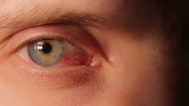 sore red human eye - contagi video stock e b–roll