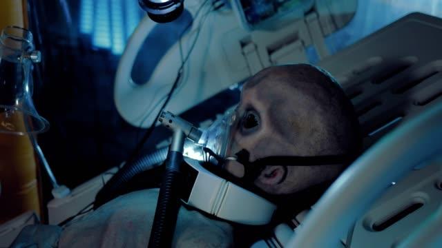 stockvideo's en b-roll-footage met space alien is onder observatie in de operationele eenheid. alien podlyuchen aan een ademhalingsmasker. - ventilator bed