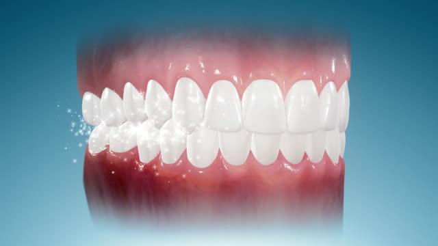 Sparkling Teeth video
